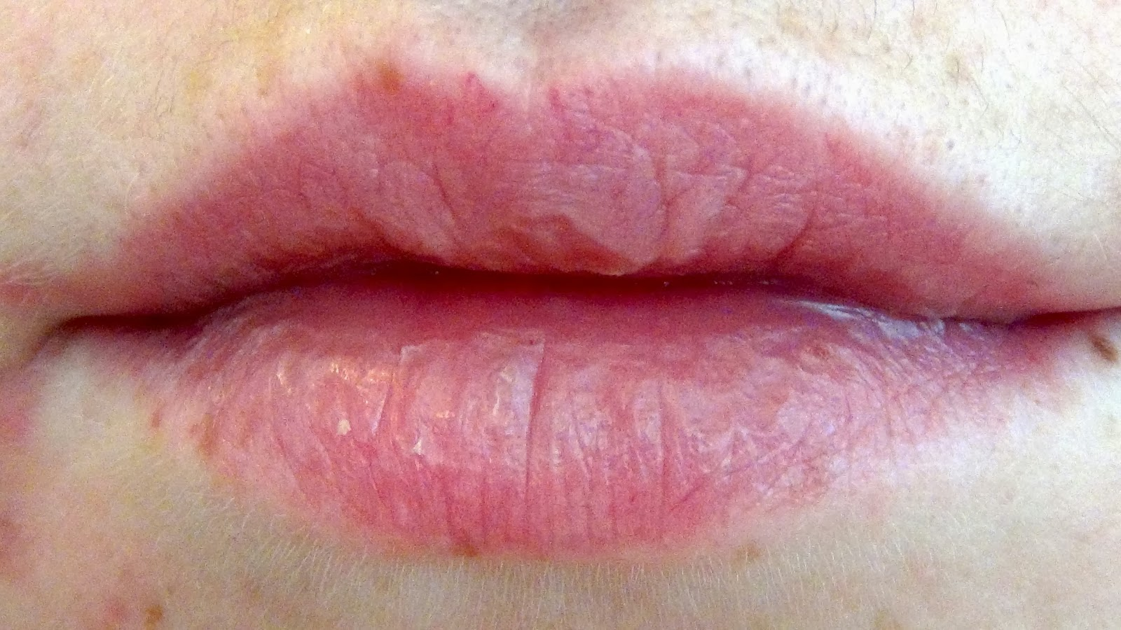 Chapped, or cracked, lips is the term commonly used to describe dry lips. Chapped lips can be caused by several factors, that include: weather excessive licking of the lips certain medications.