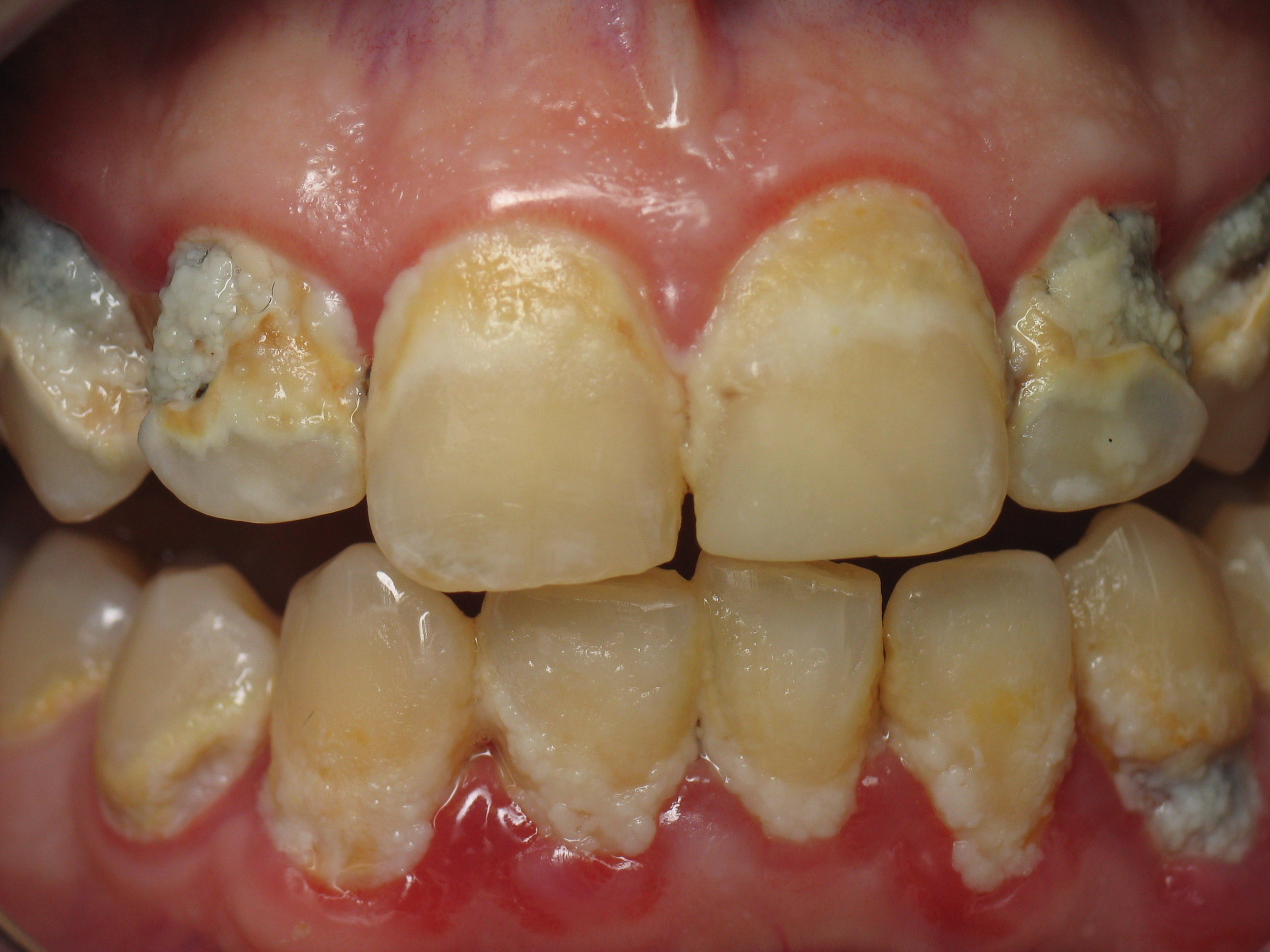 Improper Oral Hygiene Can Cause Teeth Loss    Know How