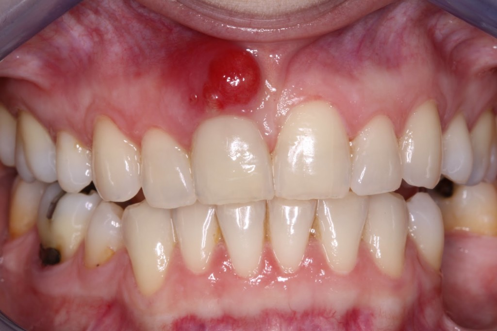 Teeth Disease