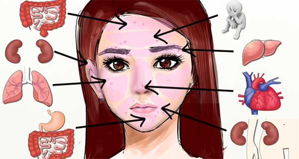 Face-Mapping-What-is-Your-Acne-Telling-You