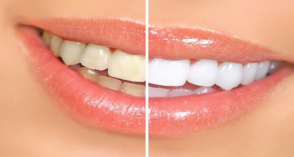How-To-Whiten-Your-Teeth-In-Just-3-Minutes-Try-This
