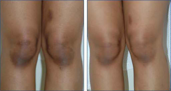 How to get rid of dark knees and elbows fast