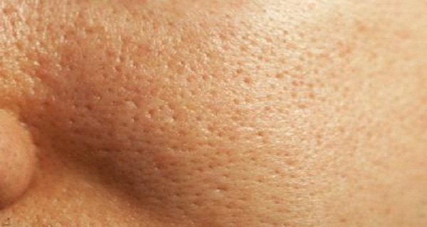 5 Best Ways To Reduce Your Pores