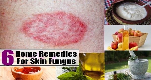 6 Best Natural Remedies For Skin Fungus