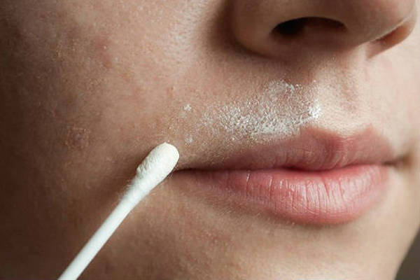 Home Remedies for Facial Hair Removal!