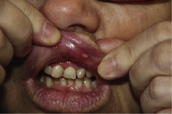 Natural Ways To Cure Mouth Ulcers