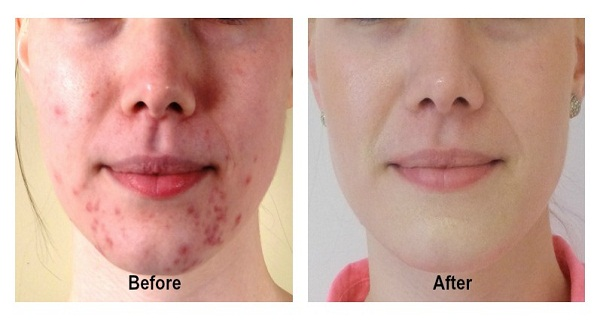 Remove Pimples And Acne From Face Naturally!