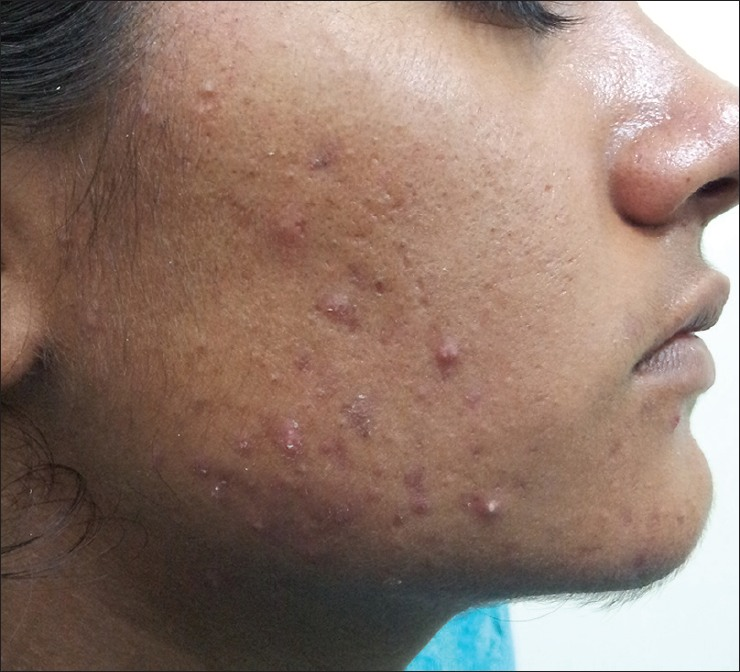 pimple_indian