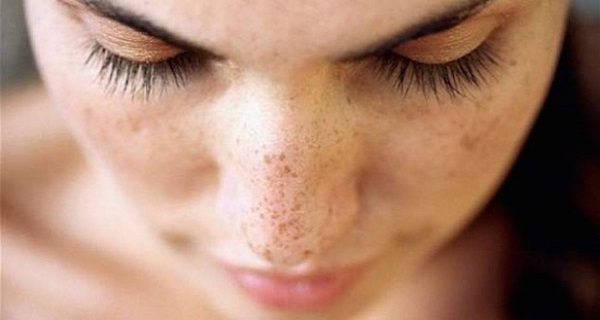 Best treatment for dark spots on face