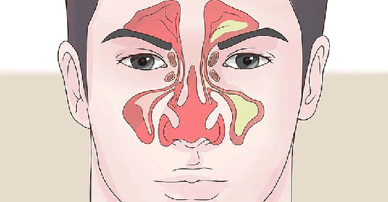 Buteyko Nose Clearing Exercise
