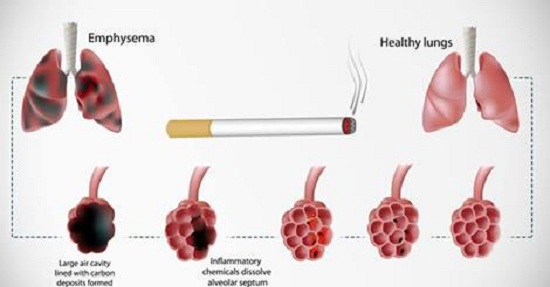 Flush Nicotine Out Of Your Body Naturally!