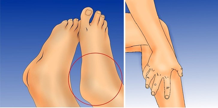 Heal The Swelling Of Ankles And Legs!