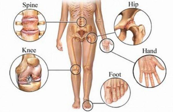 Powerful Beverages To Treat Arthritis Naturally