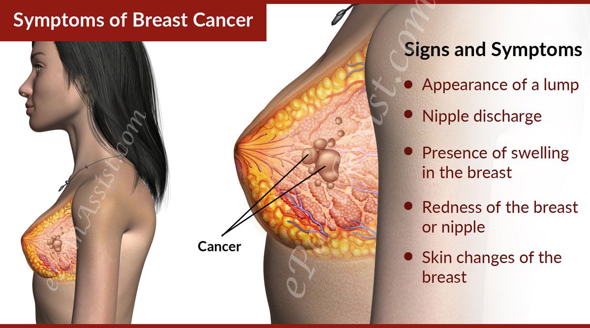 the cause effect and symptoms of breast cancer 10 signs & symptoms of breast cancer know what causes breast cancer that cancer can lead to the deformation of the overall shape and size of the breast.