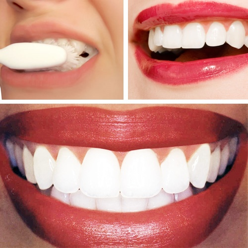3 Home Remedies For Yellow Teeth