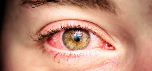 3 Homemade Remedies That Delete The Redness Of The Eyes!