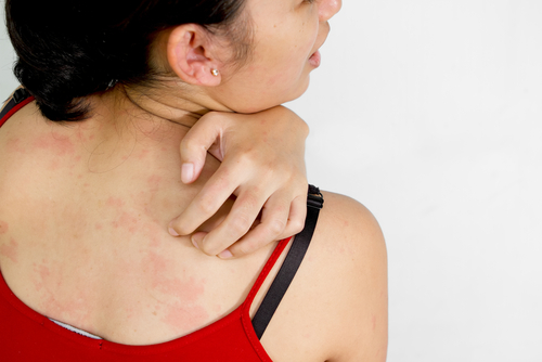 4 Natural Remedies for Itchy Skin