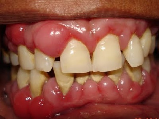 Home Remedies for Gum Swelling