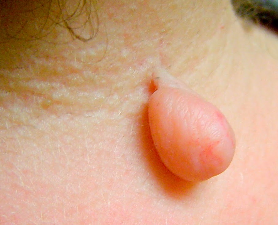 Remedies To Remove Skin Tags