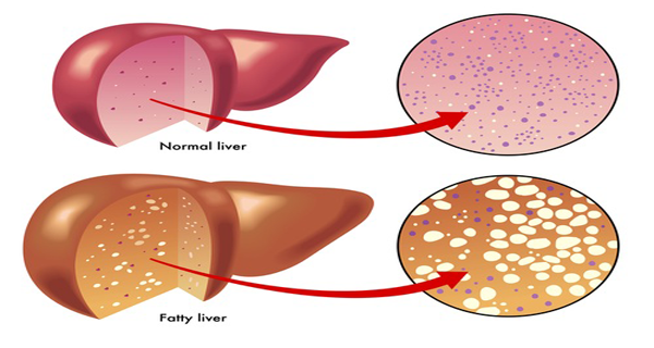 The Symptoms of Fatty Liver