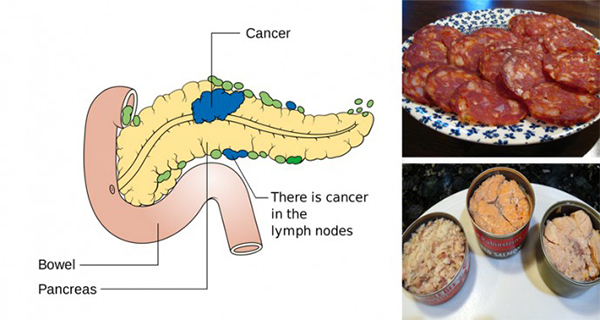 3 Cancer-Causing Foods You Should Never Put In Your Mouth Again