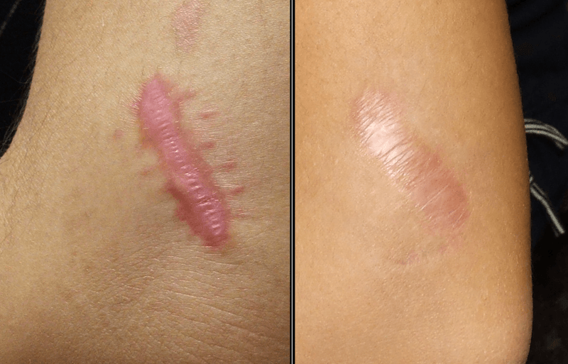 5 Easy Ways to Remove Keloid Scar!
