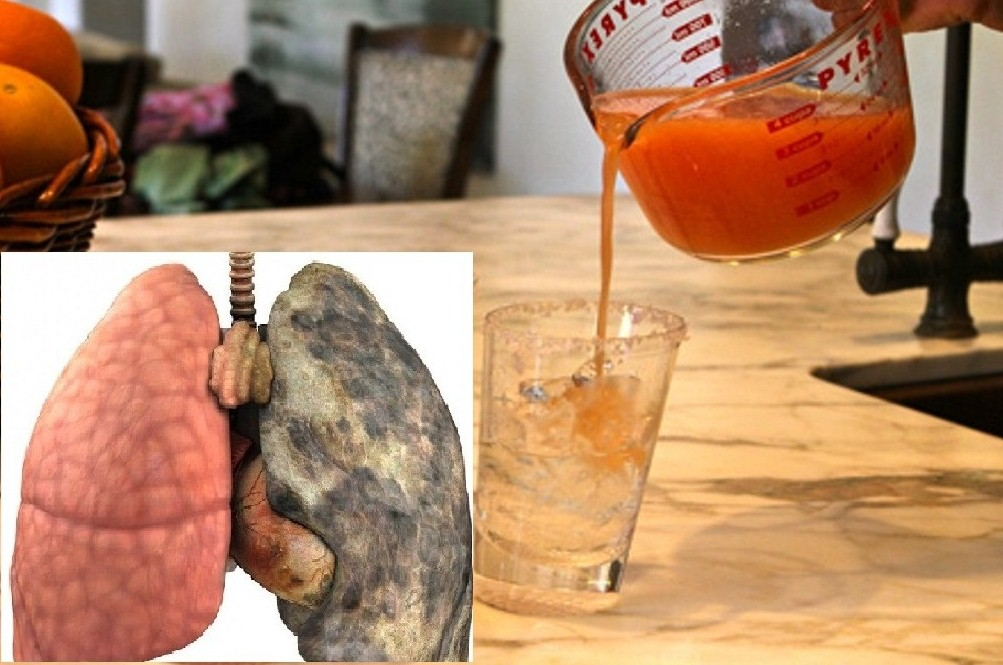 Clean Your Lungs Very Quickly Just In 7 Days