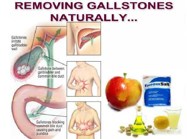 Gall Bladder Stone Removal Natural Way