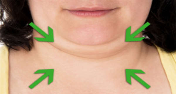 Get Rid of Double Chin Naturally By Following These 3 Valuable Tips!
