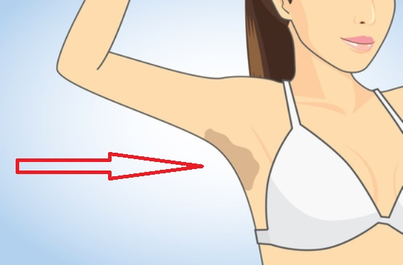 How To Easily Lighten Dark Underarms!