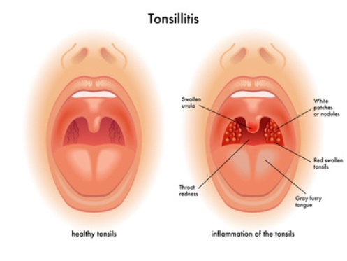 How to Easily Cure Painful Tonsillitis
