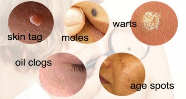 How to Prevent Your Skin Problems Naturally