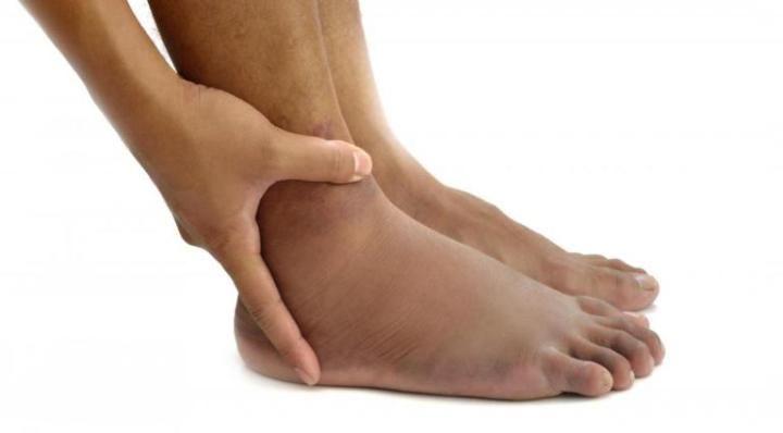 How to Reduce the Swelling and Pain in the Legs