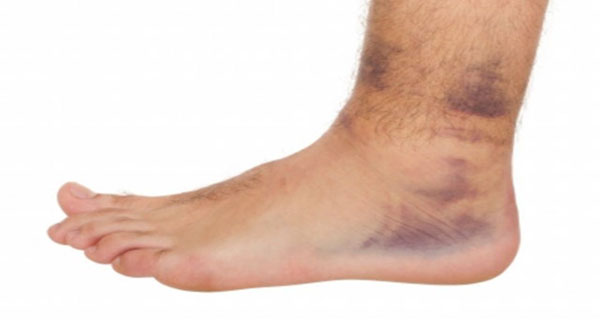 Natural Remedy For Removing Of The Swelling