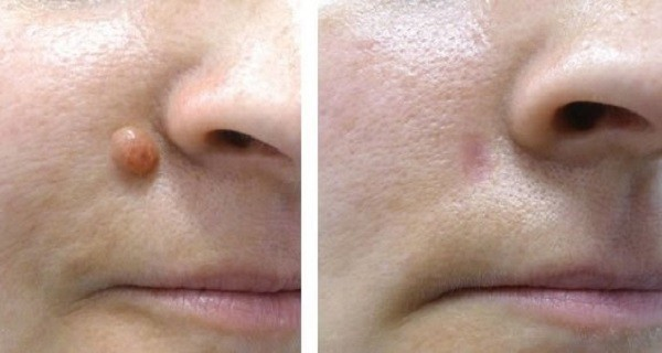 Remove the Small Warts by Using a Single Ingredient