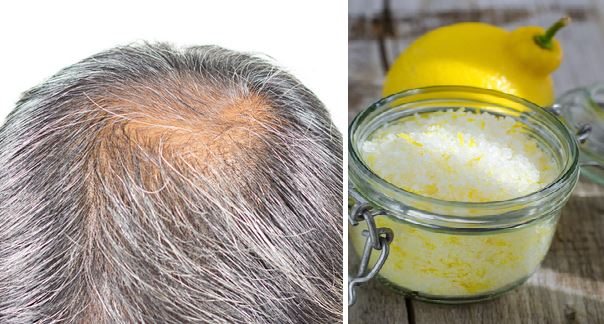 Tested Remedies for Grey Hair