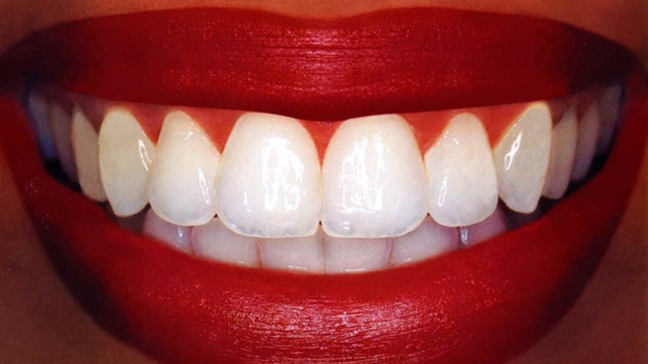The Best Recipe To Turn White The Teeth In a Few Minutes