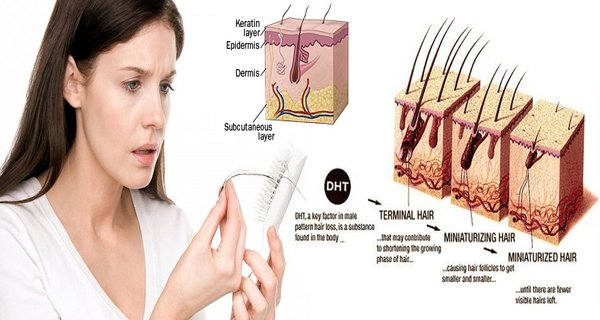 3 Things That Cause Hair Loss in Woman