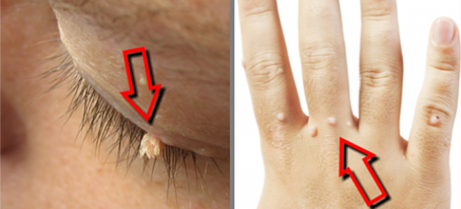 4 Effective Homemade Remedies For Removing Warts