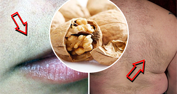 Amazing Recipe - Helps Remove Hair From The Face And The Body