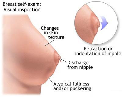 Cure the Cyst In Breast In Natural Way!