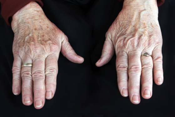 First Symptoms of Cancer Appear on the Hands