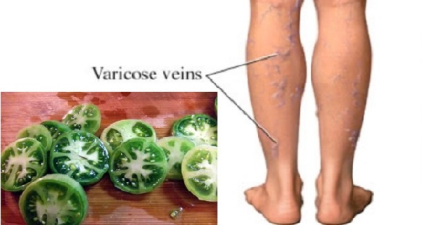 Heal Varicose Veins With the Help Of Green Tomatoes