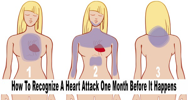 How To Recognize a Heart Attack One Month Before