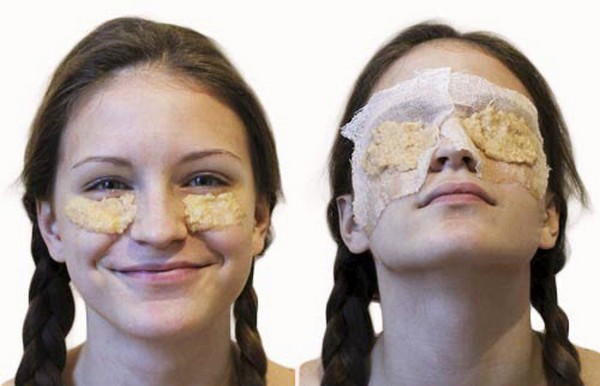 How to Get Rid of Dark Circles In 2 Days
