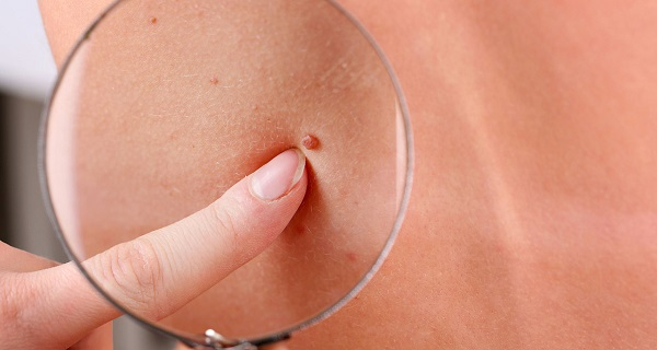 How to remove moles naturally at home