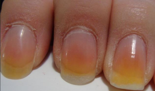Remedies to Get Rid of Yellow and Black Nails!