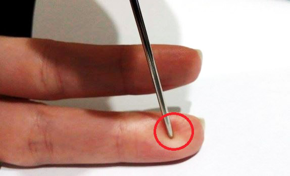 Rescue a Man of Stroke Using Only a Needle
