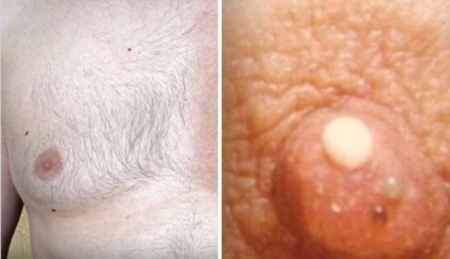 Signs and Symptoms of Breast Cancer in Men