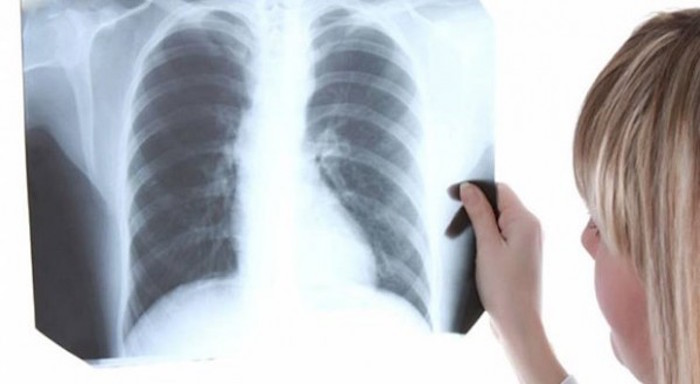 This Vitamin Treats Lung Inflammation Within 3 Hours!